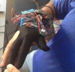 Роботизированные перчатки помогут врачам